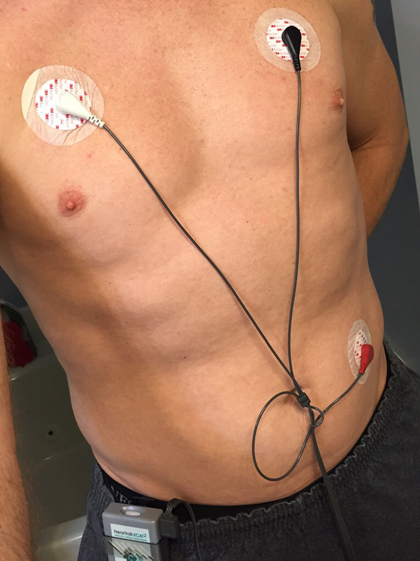 Electrodes, wires, and the monitor.